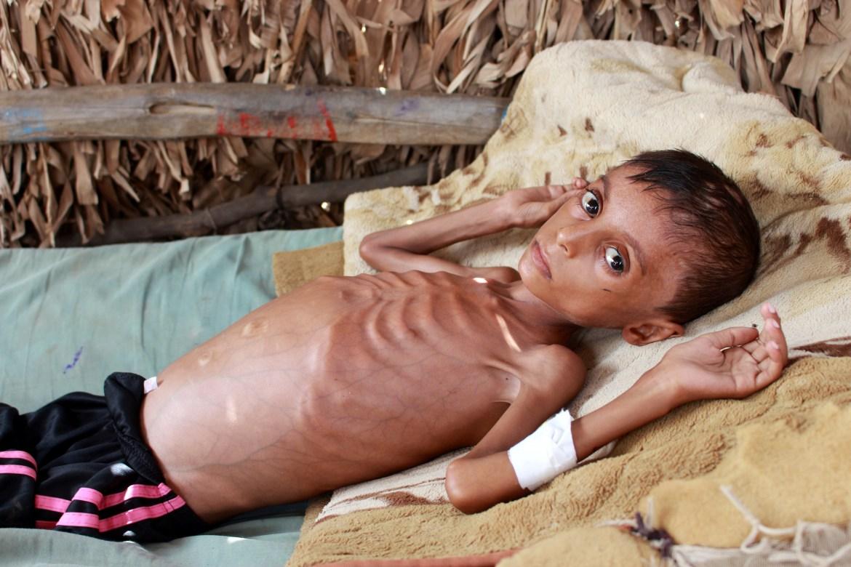 Pothranjeni dječak Hassan Merzam Muhammad leži u svome domu u provinciji Hajjah (Jemen). Jemen je država koja je u najvećoj opasnosti od humanitarne katastrofe naredne godine, navodi Crveni križ. (Reuters)